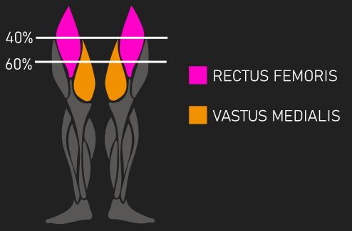 anterior quadriceps
